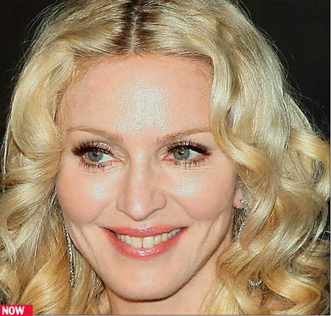 "Madonna ""The Material Girl"" and Her Face Turn 50"