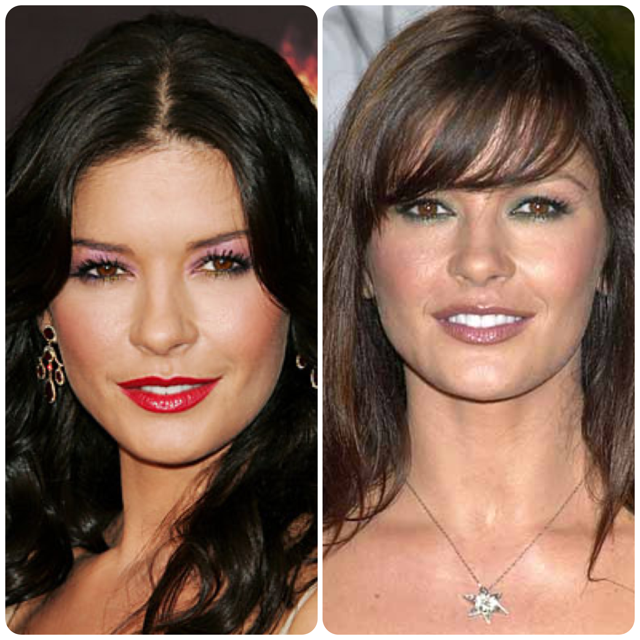 Celebrity botox before and after mens haircuts