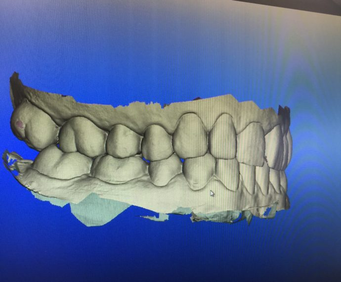 invisalign_teeth_scan