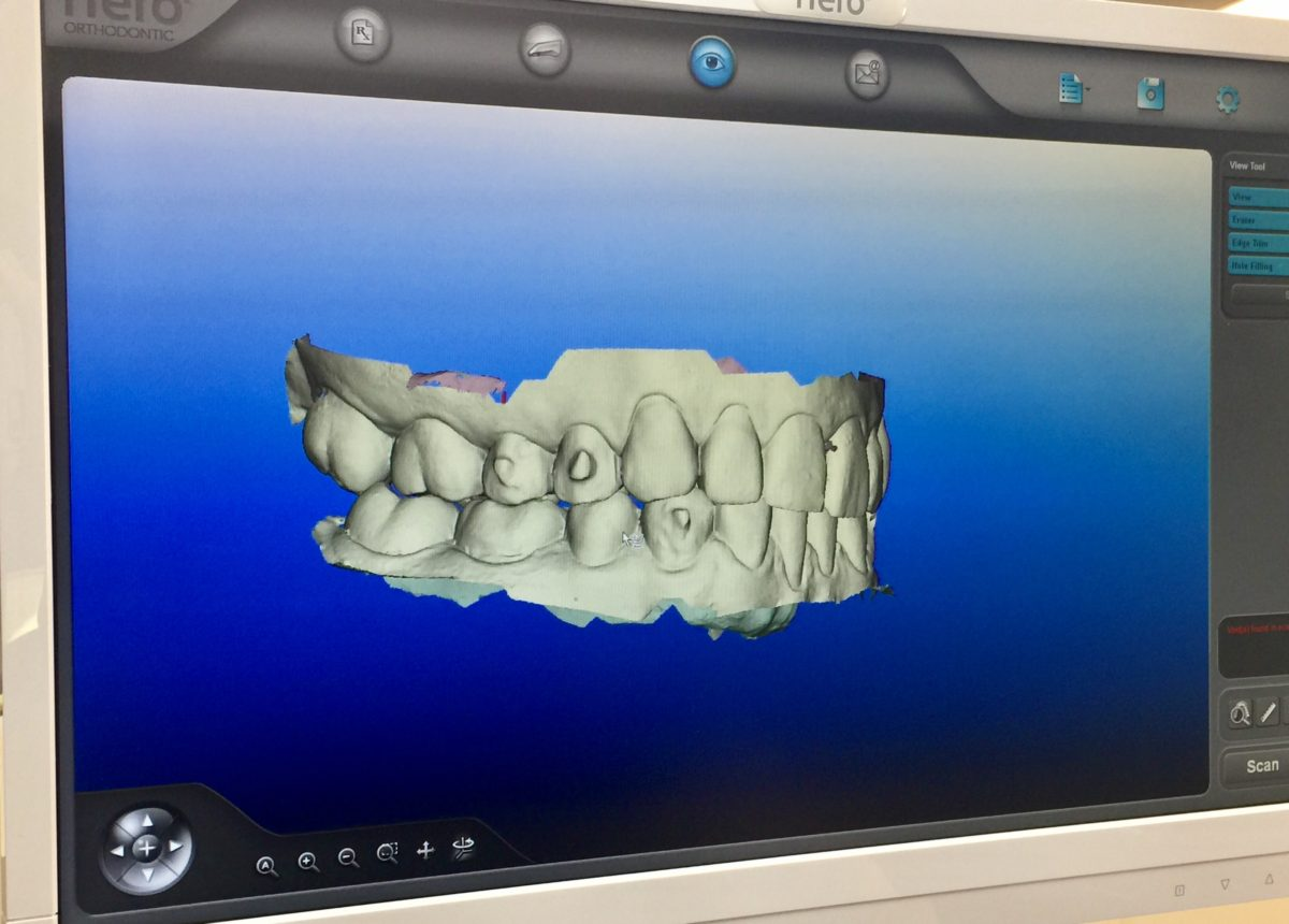 invisalign treatment update snellville ga orthodontist Gray Orthodontics