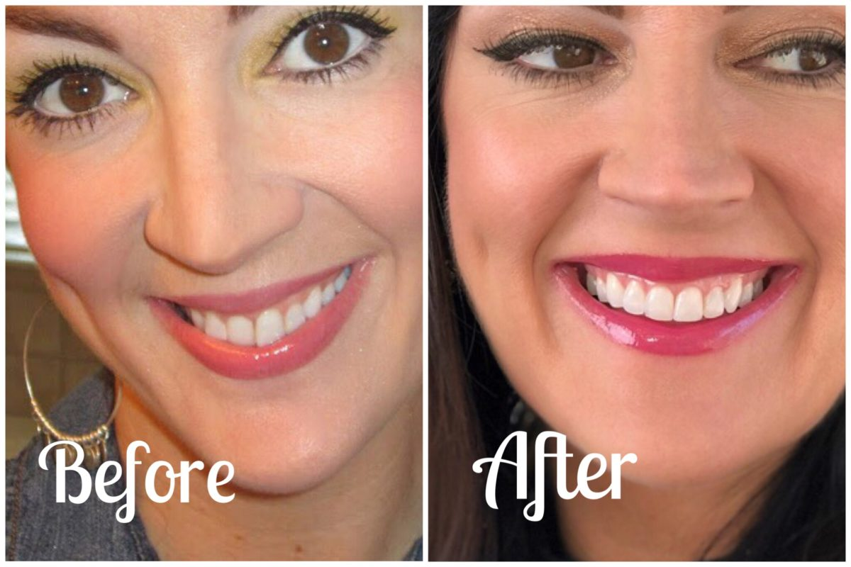 Invisalign before and after treatment