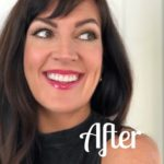 Invisalign Treatment Wrap Up Video + Before And Afters